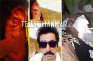 OMG: Pictures of injured Shakti Kapoor