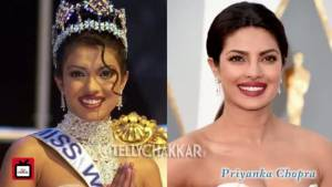 Celebs Before and After Plastic Surgery